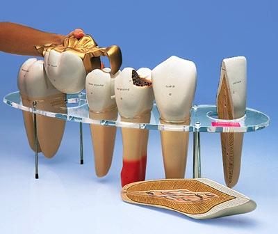 Buyamag inc Design Dental Morphology Model 7 Parts Series. Excellent Dental Education Model Used in  Dentistry Shools for Students Understand Oral Anatomy, Morphology