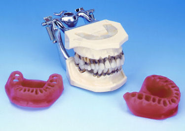 PERIODONTAL MOELS FOR  PATIENTS DEMONSTRATION HELPS PRACTICE BUILD WITH FULL PATIENTS CONFIDENCE