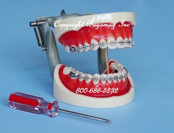 ORTHODONTIC MODELS ARE IMPORTANT PRACTICE BUILDING RESOURCE FOR ORTHODONTIC OFFICE DOCTORS