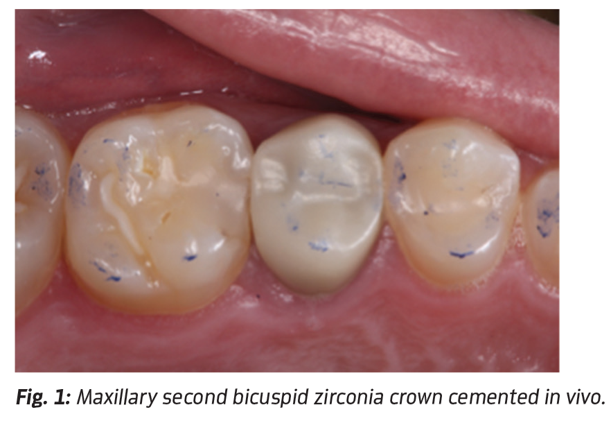 All About Zirconia by Dr  John O  Burgess - Dentaltown