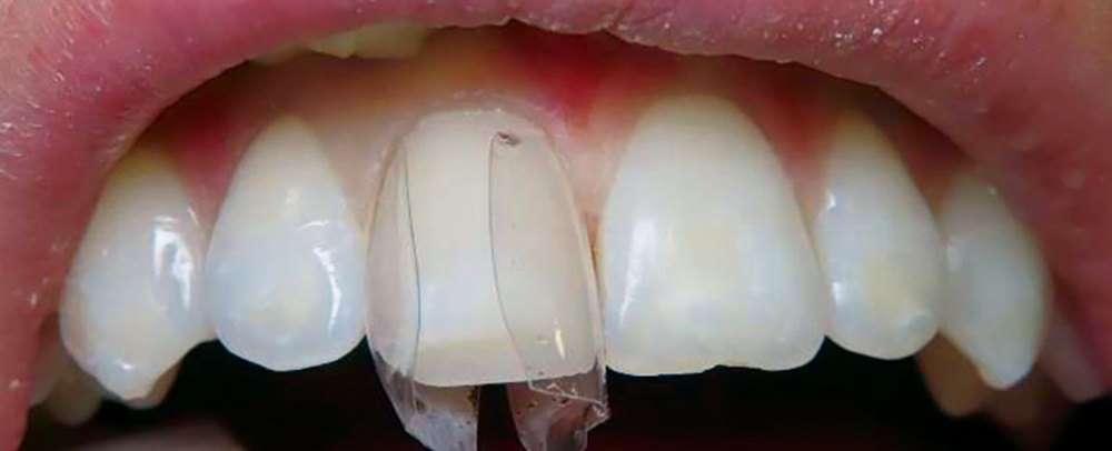 Direct Composite Veneers