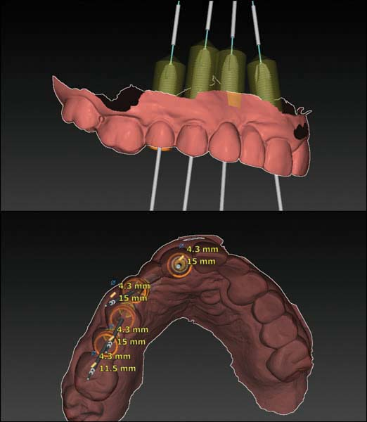 Digital Implant Therapy