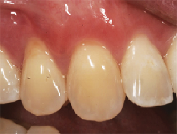 Does My Patient Need a Gum Graft? Dentaltown board member Dr. Brian Gurinsky discusses the classification system for tissue grafts, and how to understand how to determine if a patient needs one.