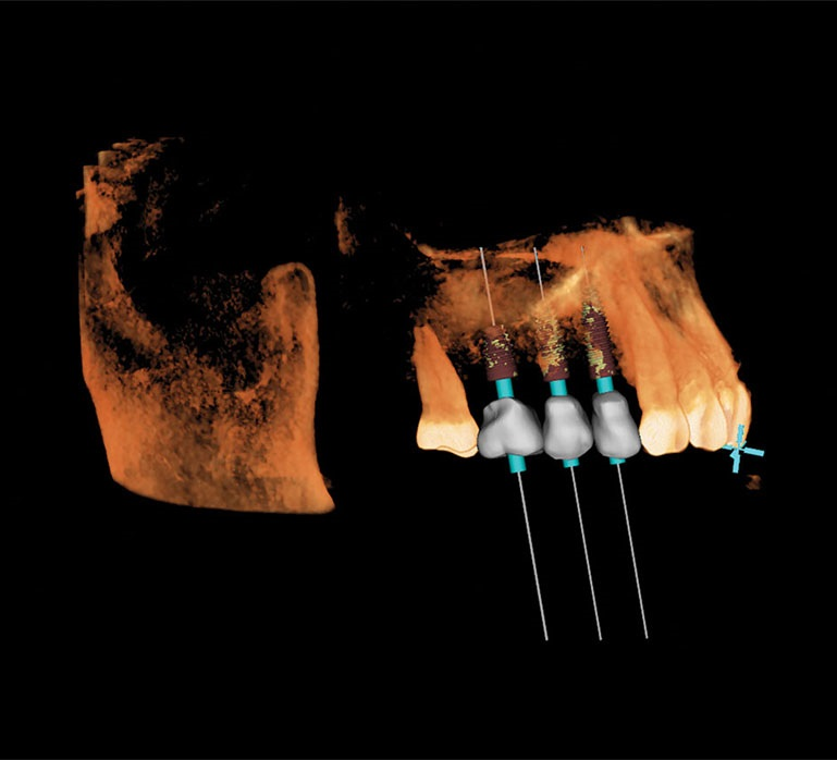 Robotic-Assisted Dental Implant Surgery