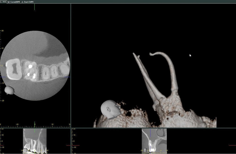 File Delivery for Endodontic Treatment