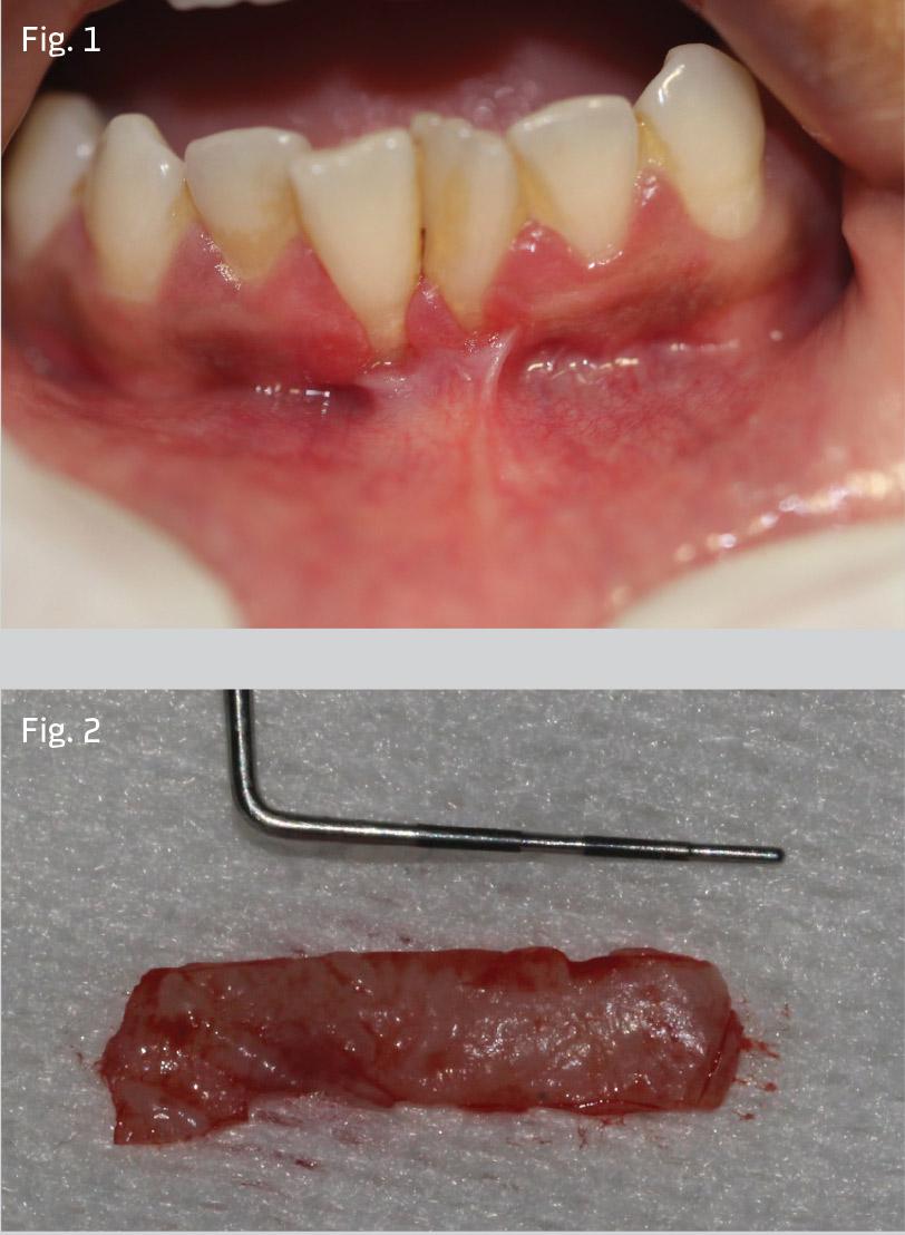 Figs 1-2