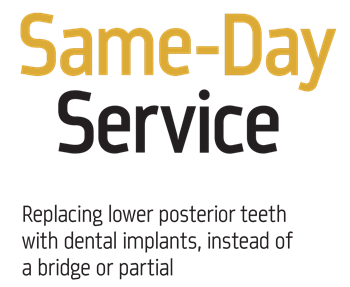 Show your work: Same-Day Service Dr. Ara Nazarian shares a case study involving same-day implants for four teeth in the lower posterior region.