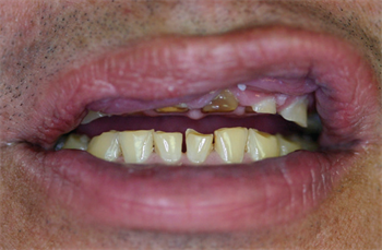 Functional Osseous Crown Lengthening: A Primer Denver periodontist and Dentaltown board member Dr. Brian Gurinsky discusses functional crown lengthening, including a primer on when and why the procedure makes sense for patients.