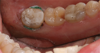 Indirect vs. Direct Restorations Dr. Richard Rosenblatt discusses indications for selecting the right milling material for indirect and direct resin restorations.