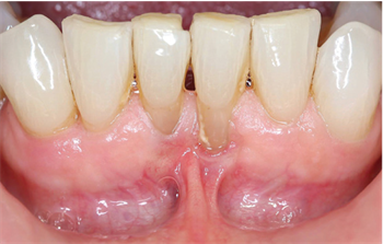 Show Your Work: Mandibular Frenectomies Made Simple Dr. Timothy Anderson shares a case in which he treated a mandibular frenectomy with a CO2 laser, which requires no anesthesia and no sutures, and involves almost no blood loss.