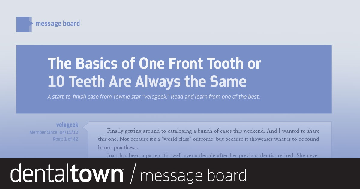 """The Basics of One Front Tooth or 10 Teeth Are Always the Same    A start-to-finish case from Townie star """"Velogeek."""" Read and learn from one of the best."""