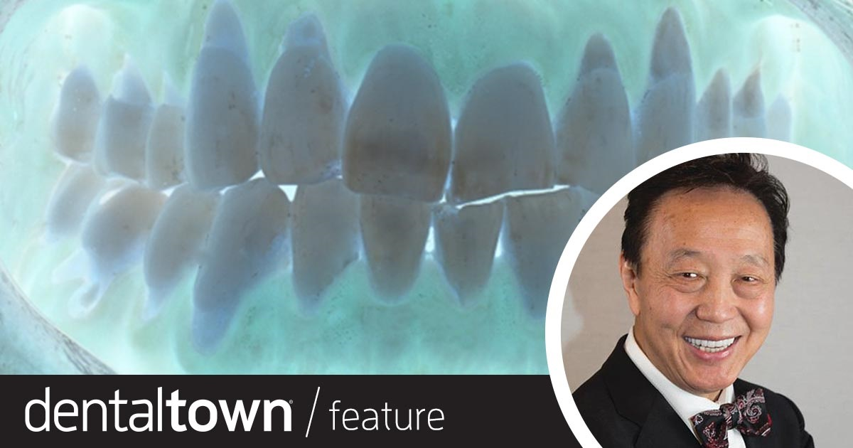 Our Roots Are(n't) Showing Dr. John Chao shares a case study that demonstrates the minimally invasive Pinhole Surgical Technique in reversing gingival recession.