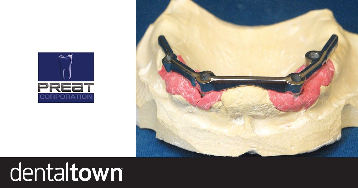 Product Profile: Hader Bar Attachment System A versatile overdenture system