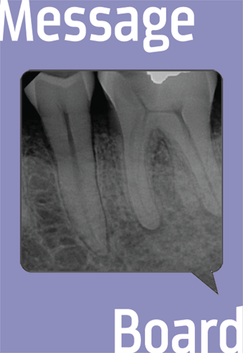 Third Root on #19 A dentist turns to the boards before deciding what to do with a tooth with two distal roots. Should he extract?