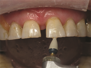 Show Your Work: Treating Incisal Edge Wear  Dr. Marvin Fier discusses situations that might lead to a patient's eroded incisal edges and shares a case study in which he restored the physiologic contours with a universal composite.