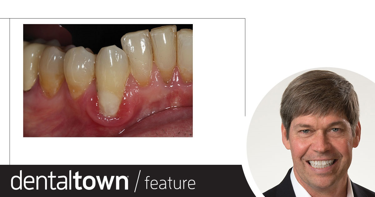 Implants and Occlusal Forces Dr. Jeff Scott discusses the importance of occlusion in implants, including why bite force needs to be evaluated especially with implants, what technology can help assess this, and what dental professionals can do if they don't have access to certain technologies.