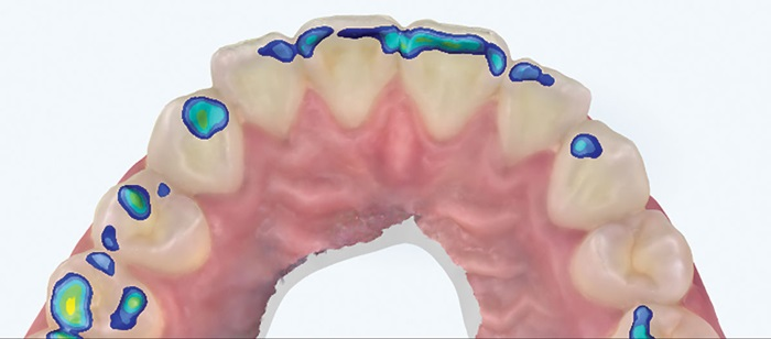 Show Your Work: Dental Restorations — Building Better Bonds