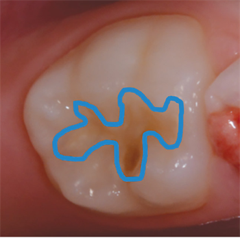Is It Time to Be Conservative, or Progressive? Dr. Jarod Johnson explores different restorative materials that can be utilized for primary teeth.