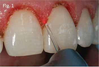 The Dental Laser's Role in Managing Periodontal Disease Dr. Samuel Low follows the growth of laser use in health care and discusses in detail the periodontal laser.