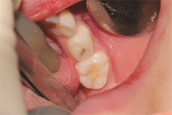 Adhesion in Primary Dentition Restorative Dentistry Dr. Carla Cohn discusses which adhesives work best when working on pediatric patients, and shares two cases that demonstrate her findings and techniques.