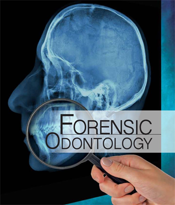 forensic dental case studies A panel of forensic experts that examined the brewer case says the wounds on the victim were not human bites at all, but were probably caused by crawfish and insects nibbling on the corpse .