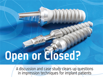 Open or Closed? Dr. Gary Radz discusses the indications for using open-tray or closed-tray impression techniques for implant cases.
