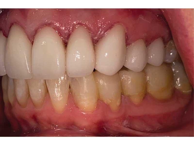 Dental Occlusion
