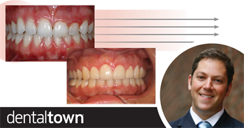 Aesthetic Crown Lengthening In this follow-up to his February 2018 article on functional crown lengthening, Denver periodontist and Dentaltown board member Dr. Brian Gurinsky explains why you should lengthen a crown for aesthetic reasons.