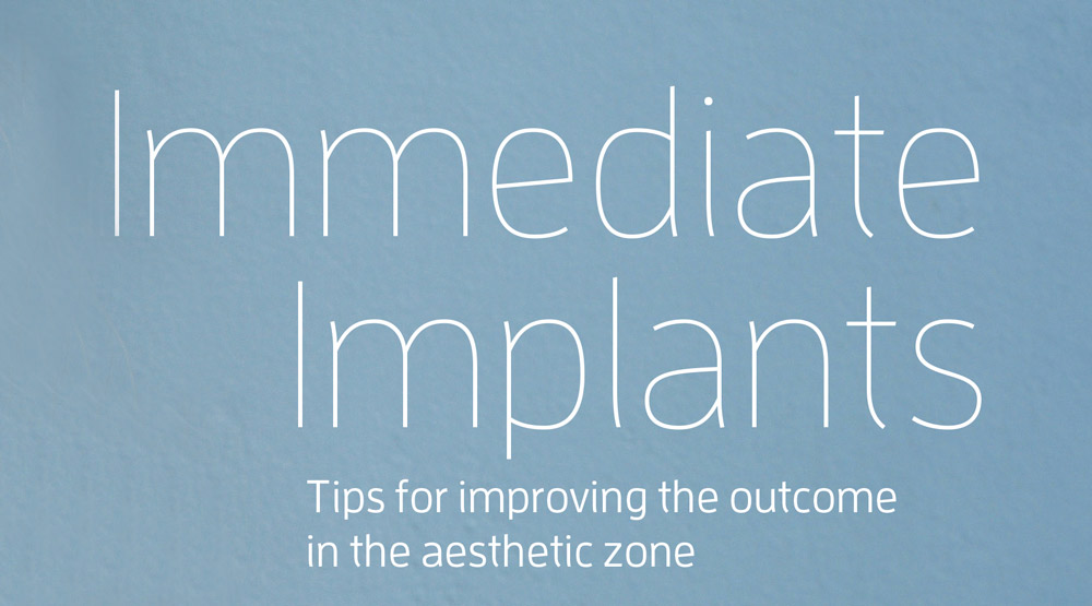 Header: Immediate Implants