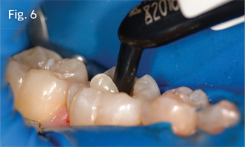 Practice Solutions: 3M How to best use bulk-fill composite in posterior restorations