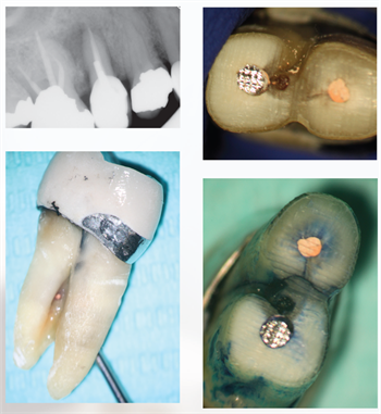 Contemporary Endodontics Dr. Daniel J. Boehne discusses how CBCT helps endodontists understand the morphology of individual teeth—and how using conservative root shapes can lead to predictable results as long as clinicians are willing to properly embrace technology.