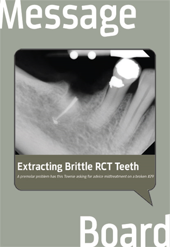Extracting Brittle RCT Teeth A premolar problem has this Townie asking for advice midtreatment on a broken #29.