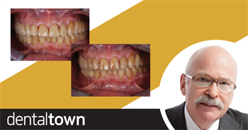 Show Your Work: Efficient treatment Using a Digital Workflow Dr. Jonathan L. Ferencz demonstrates how a digital workflow and in-office CAD/CAM technology can help dentists create provisionals and treatments for multiple single-unit restorations in only two clinical visits.
