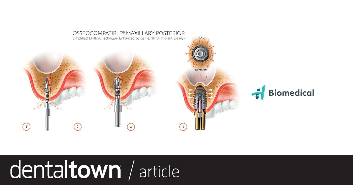 Product Profile: Osseocompatible Implant Systems A new age of dental implants