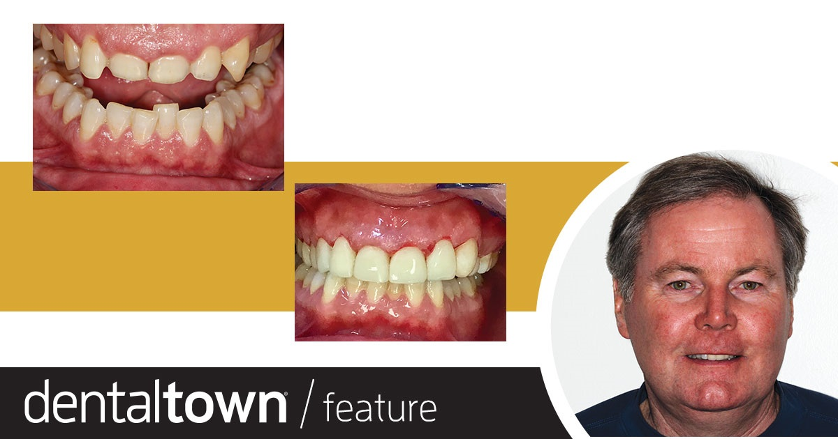 Show Your Work (Worn) Down But Not Out Dr. Terry Shaw, a Townie with hundreds of followers on the Dentaltown message boards, shares a case in which he rebuilt a patient's dentition using composite material.