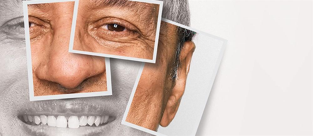 Craniofacial Implants and Prosthetics