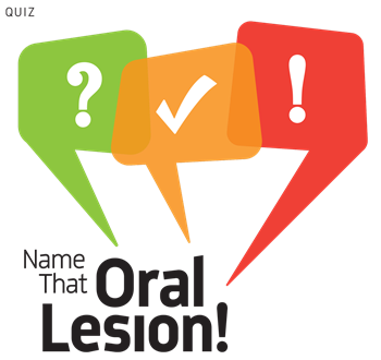 Name that Oral Lesion! Dr. Seena Patel of Southwest Orofacial Group shares several images from case studies and challenges readers to identify what the radiographs reveal.
