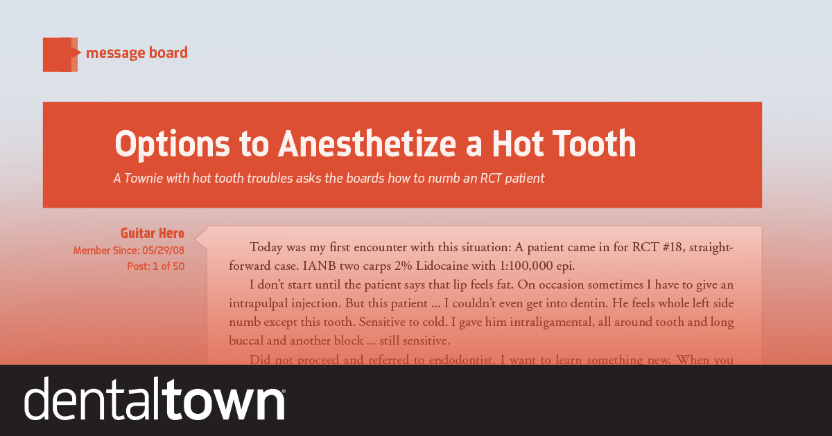 Options To Anesthetize A Hot Tooth A Townie with hot tooth troubles asks the boards for help numbing an RCT patient.