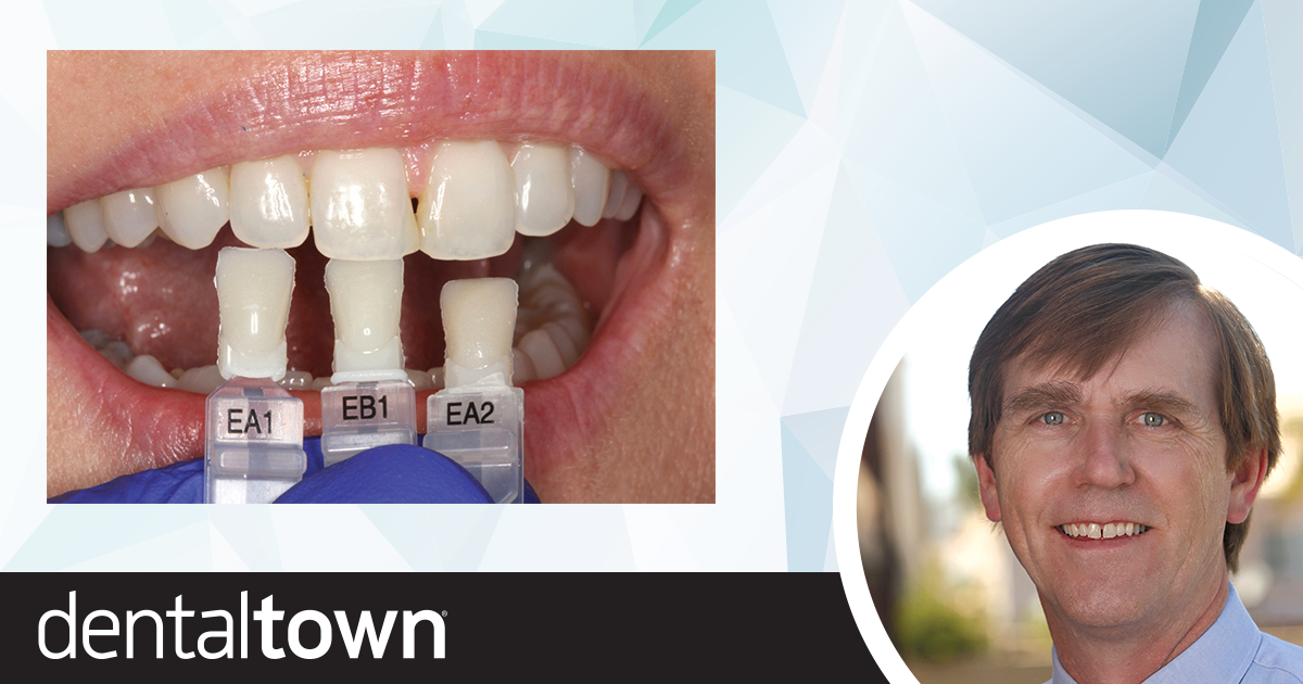 A Predictable Way to Close the Gap Dr. James Peyton shares a case study about a simple way to close a diastema.