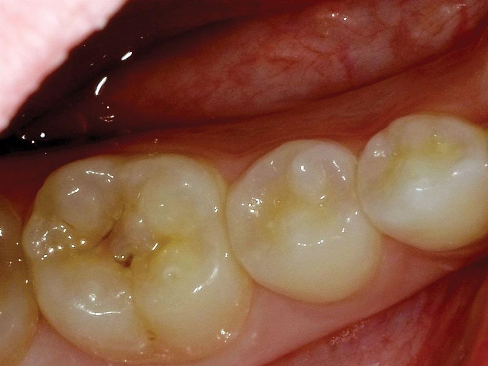 Posterior restorative dentistry