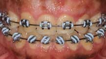 GingivectomyTechniques
