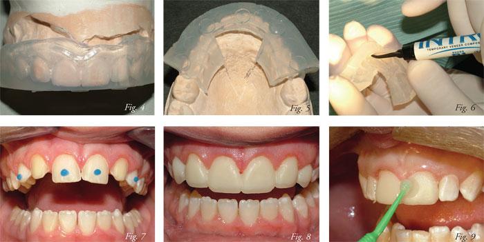 Veneer Provisionals Alternative Methodologies Dentaltown