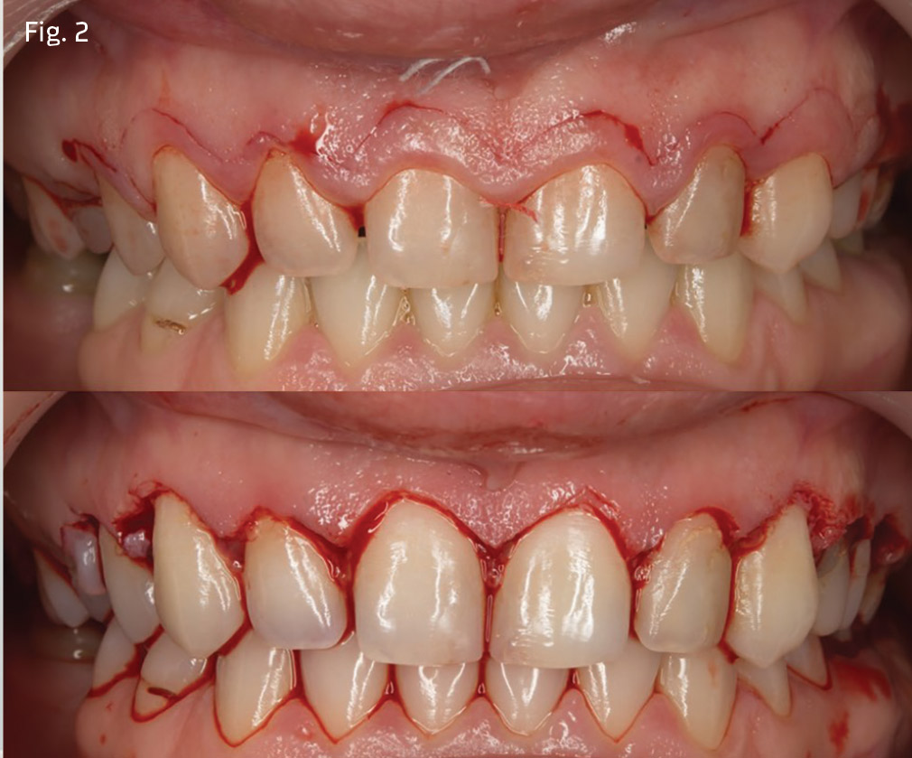 Before and after photos of veneers K R Whitening - Simply Whiter Teeth