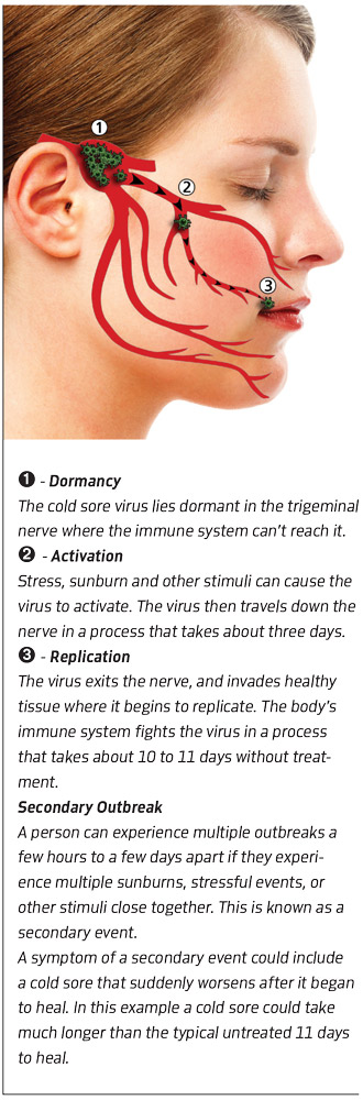 It's a common condition for people who have been exposed to the herpes virus 2