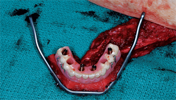 Building a Mandible Achieving Total Reconstruction in a Single Operation