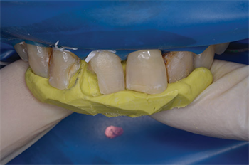 Putty in My Hands Direct Restoration in the Anterior Teeth Using Two Techniques