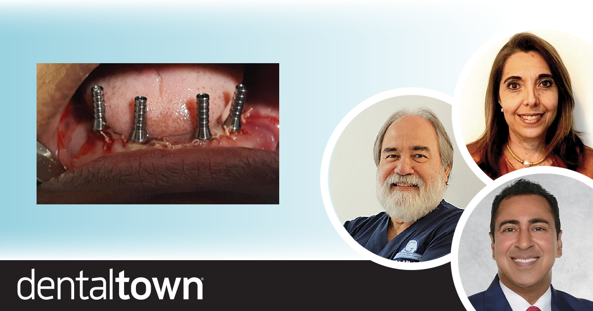 Full-Arch Implant Restoration Dr. Arun K. Garg and colleagues share a full-arch implant restoration case report that demonstrates a relatively simple alternative to traditional dentures or overdentures.