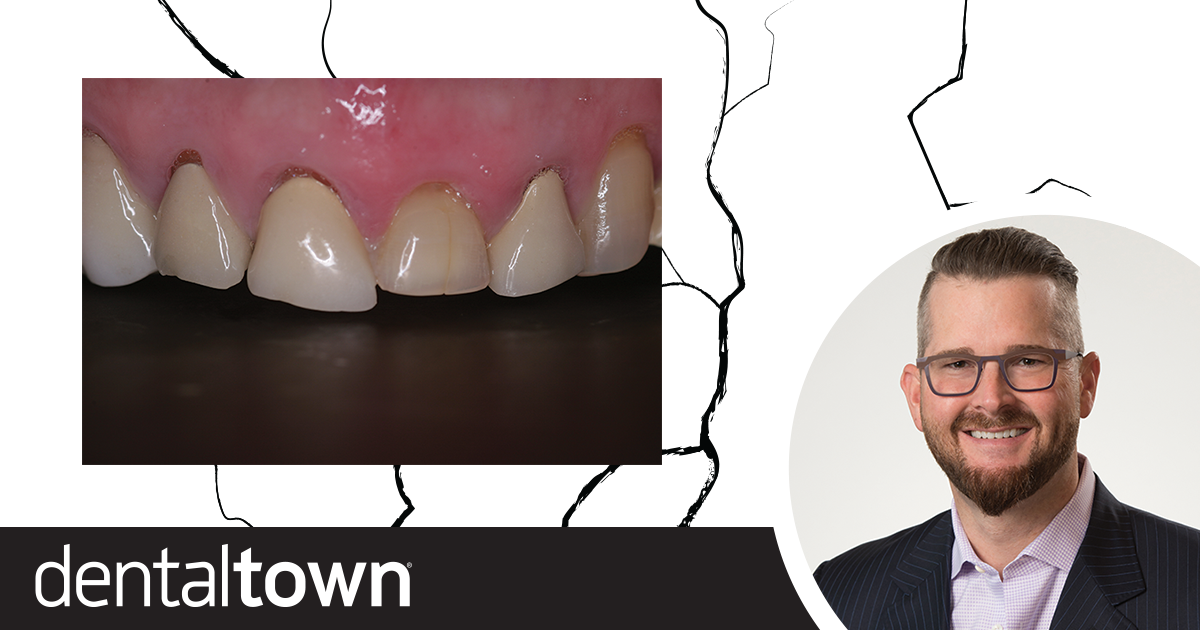 Why Your  Porcelain  is Breaking Dr. Leonard Hess explains the top reasons why porcelain restorations break—and how to prevent it.
