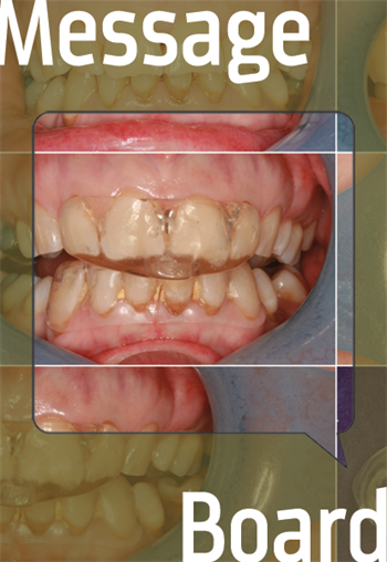 How Did This Happen? Townies discuss sleep bruxism and how to prevent occlusal wear.