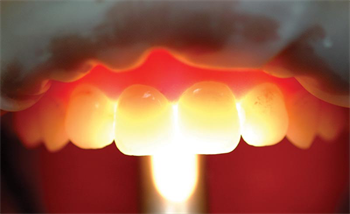 Show Your Work: Let the Light In Dr. Daniel Poticny shares a case in which he created lifelike restorations on a patient who had significant wear on teeth #8 and #9.